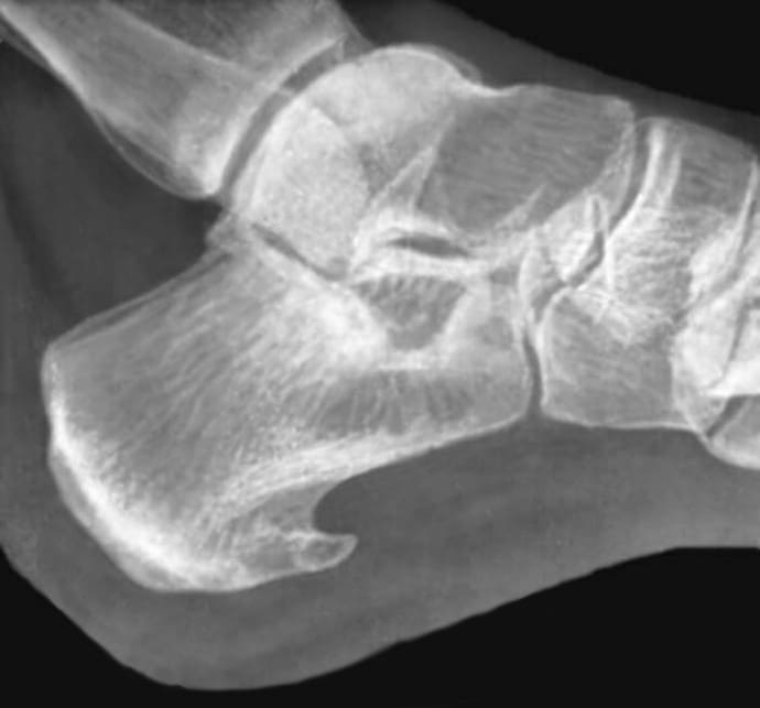 Пяточная шпора фото рентгена