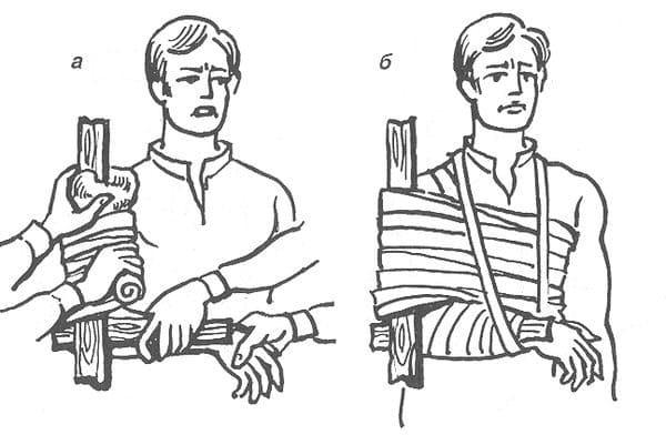 Перелом нижней челюсти: причины и симптоматика травмы, особенности оказания первой помощи и последующее восстановление, наложение шины