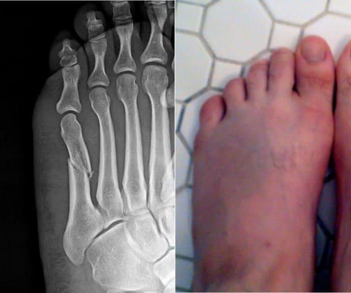 Перелом ступни когда можно наступать на ногу