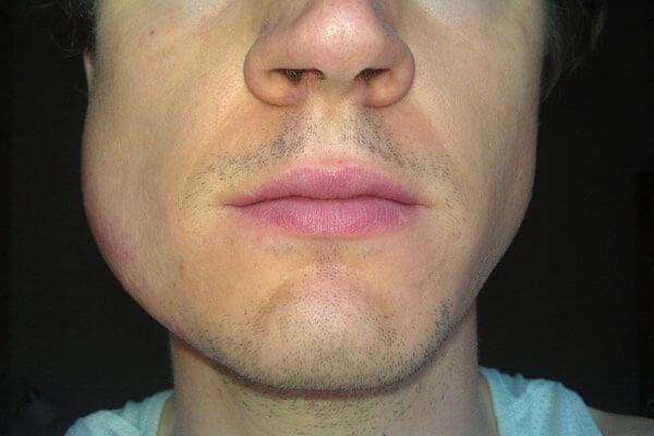 Отекшая щека после удаления зуба