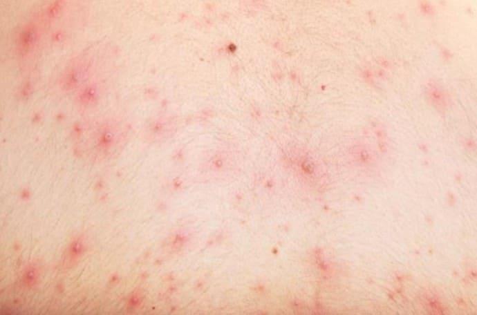 Высыпка аллергическая