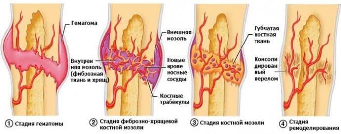 Костная мозоль на ноге причины thumbnail