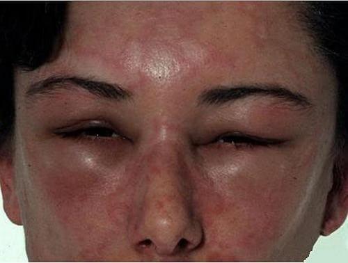 Аллергия на кошек фото признаки и лечение