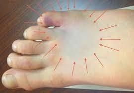 Перелом мизинца на ноге: признаки,симптомы и лечение народными средствами