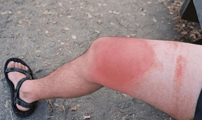 Аллергические покраснения на коже