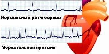 Аритмия сердца: причины, симптомы, лечение, первая помощь при сердечной аритмии