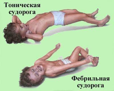 Судороги у ребенка после высокой температуры