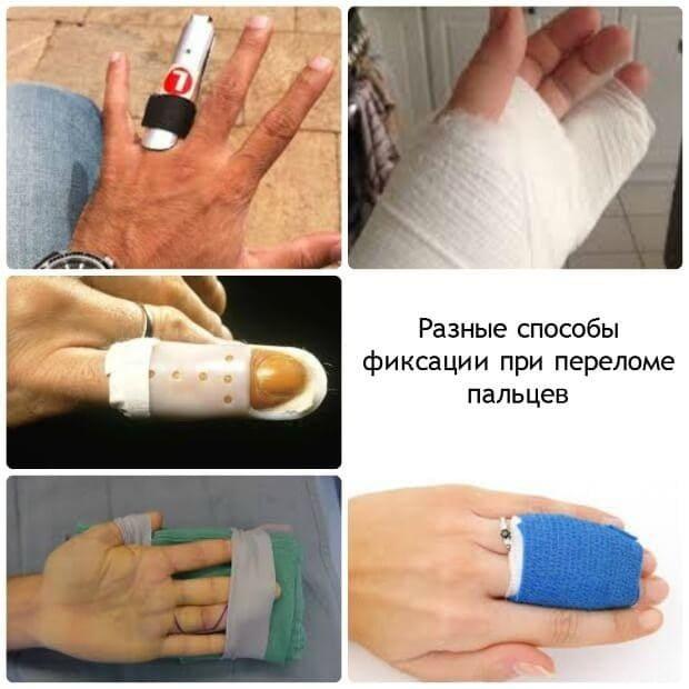 Как вылечить перелом пальца