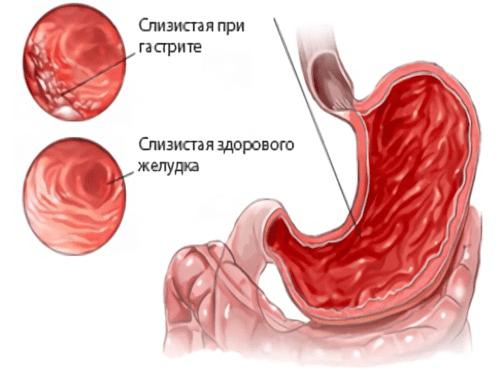Здоровая слизистая желудка и слизистая при гастрите