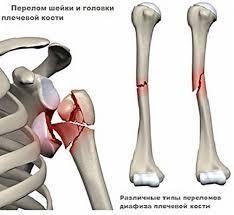 разрыв капсулы лучезапястного сустава