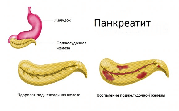 Болит позвоночник посередине спины отдает в желудок