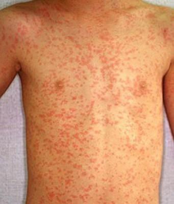 Аллергическая реакция на медикаменты
