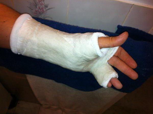 Околосуставной перелом пальца
