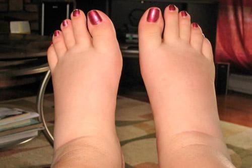 Отеки щиколоток ног при месячных