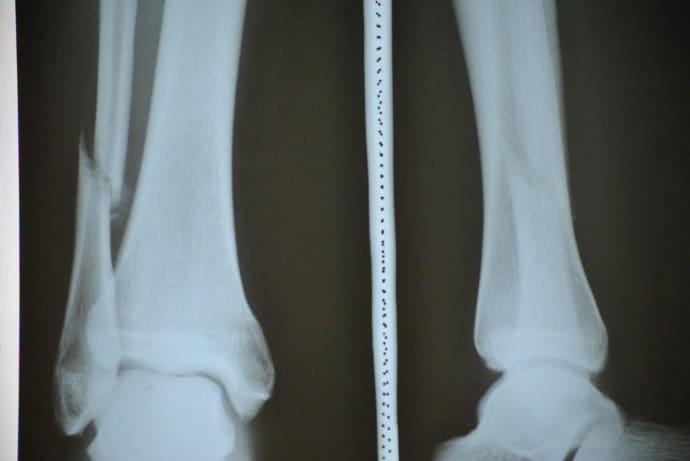 Перелом заднего края большеберцовой кости без смещения