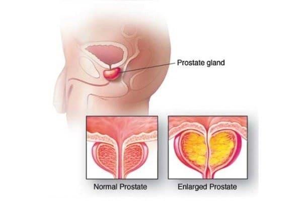 Нормальный размер предстательной железы у мужчин по возрасту