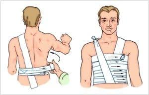 Что делать если сломал ребра при падении