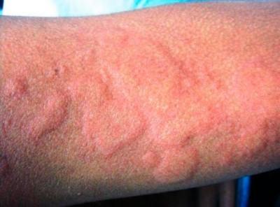 Как вылечить медикаментозную аллергию thumbnail