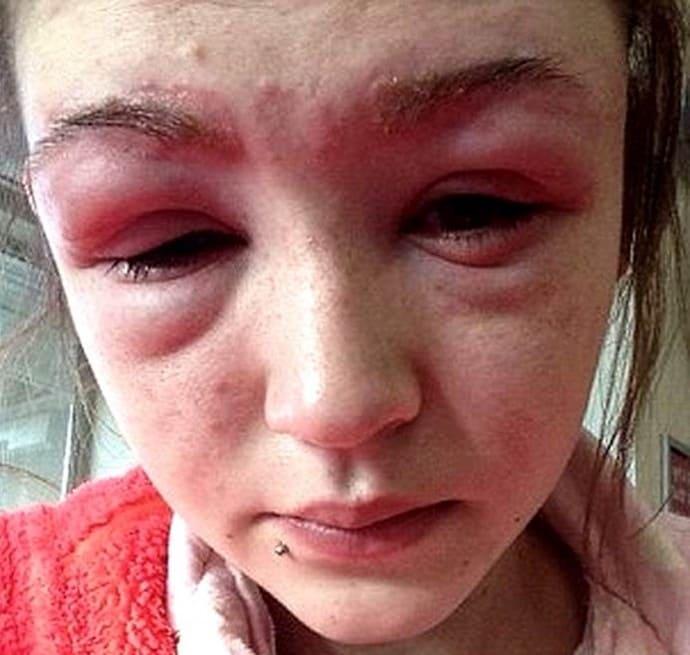 super-tits-facial-edema-due-to-allergic-reaction