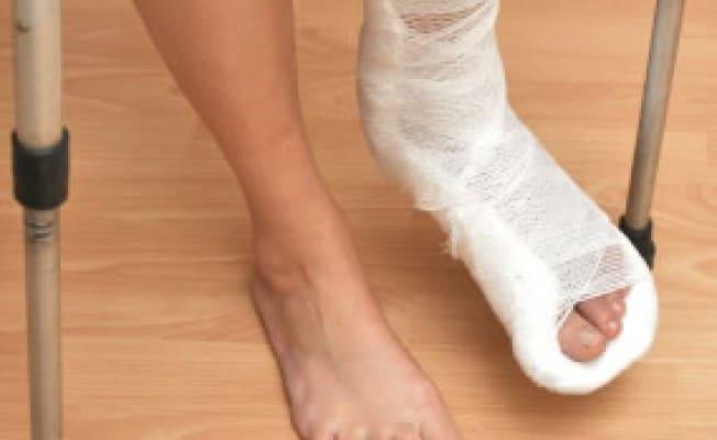 Болит кубовидная кость стопы что делать