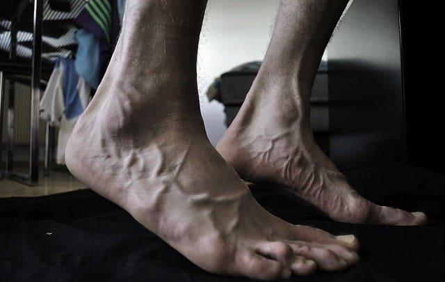 пожилые люди часто страдают от судорог ног, показаны ноги