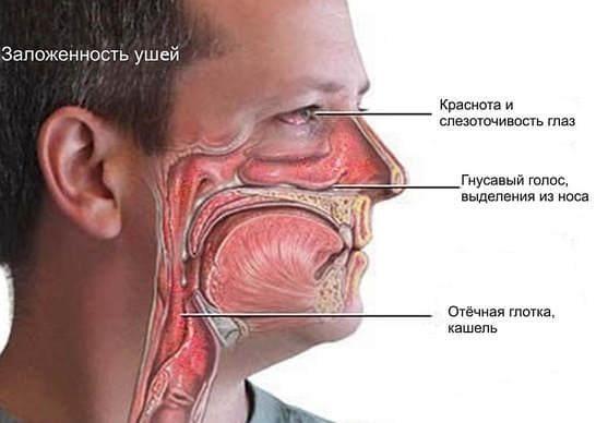 Аллергия на пыль - симптомы и лечение у взрослых и детей на коже