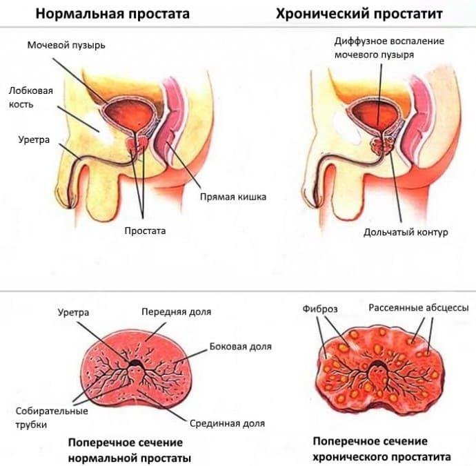 Рисунок отличия нормальной простаты и при хроническом простатите