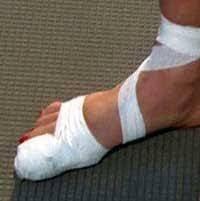 Палец опух на ноге перелом