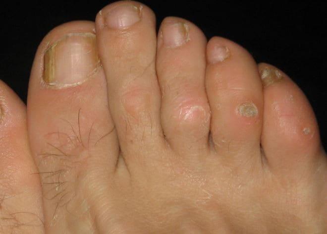 Болит сухой мозоль на ноге что делать