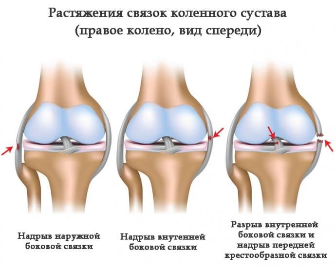 Ушиб связок коленного сустава мазь