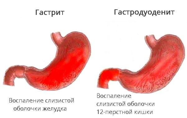 Отличия гастрита и гастродуоденита на схеме