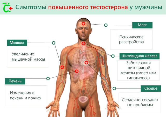 Симптомы повышенного тестостерона у мужчины