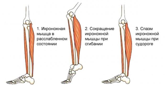 показан спазм икроножной мышцы при судороге