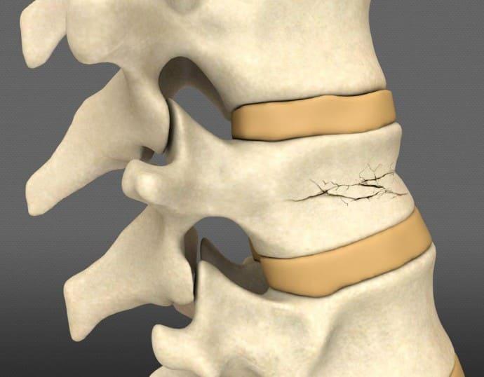 Компрессионный перелом позвоночника - симптомы, лечение