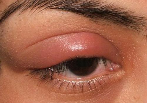Аллергия покраснение глаз лечение thumbnail